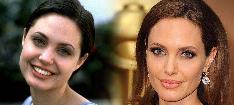 Angelina Joline, antes y después