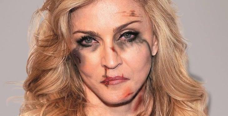 Madonna, golpeada (Facebook: Alexsandro Palombo)