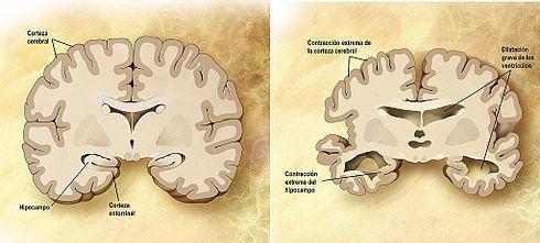 Cerebro sano y cerebro dañado por el Alzheimer