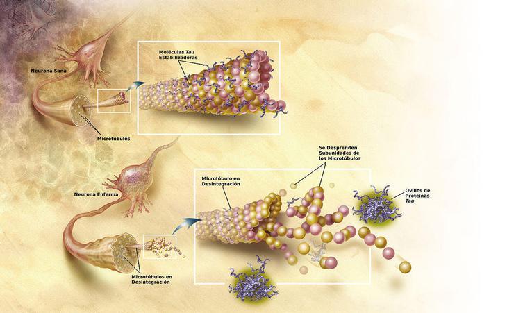 Neurona dañada con ovillos de proteína tau