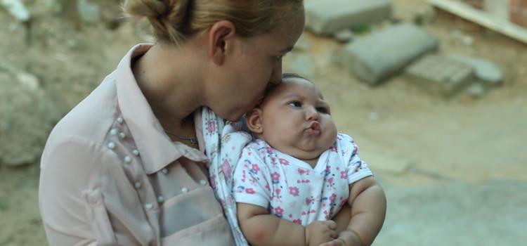 Se ha relacionado el virus del Zika con la microcefalia en bebés