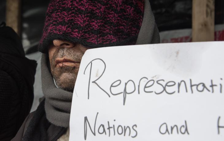 Un refugiado se cose los labios en protesta por el desmantelamiento de Calais