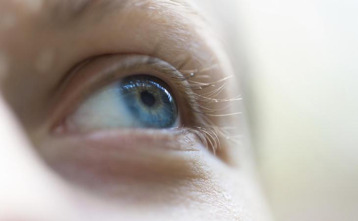 ¿Por qué se produce la miopía?