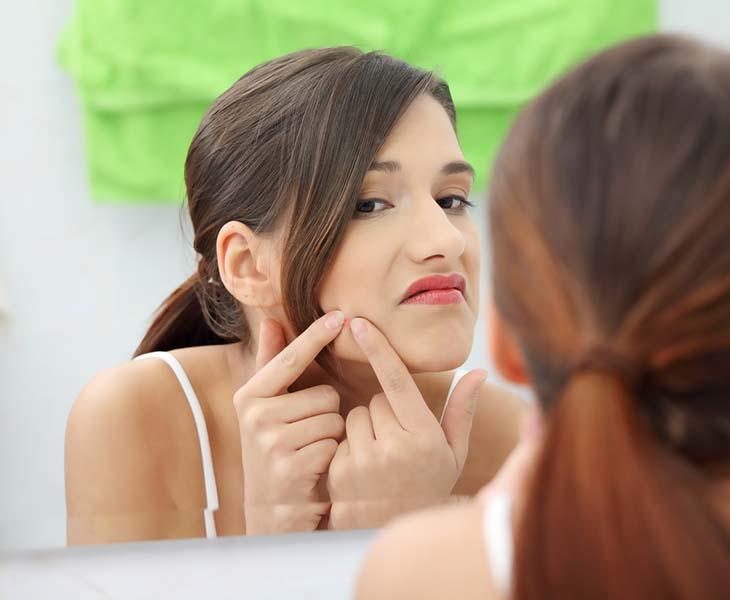 El acné podría tener su lado beneficioso