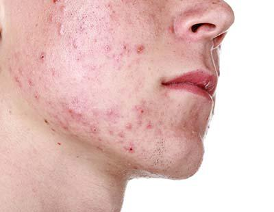 Tener acné de joven te asegura envejecer más lentamente
