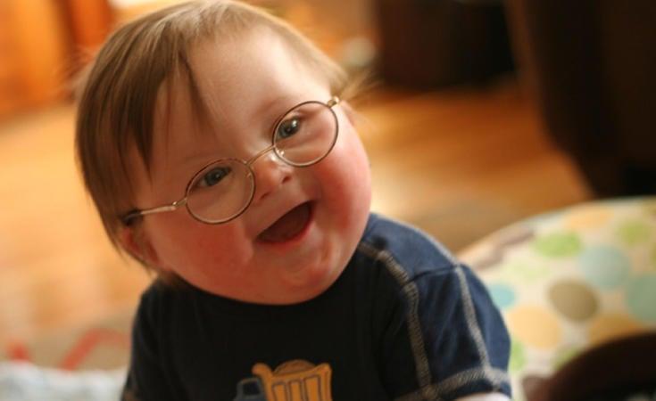 Las personas con síndrome de Downtienen tres cromosomas en el par 21