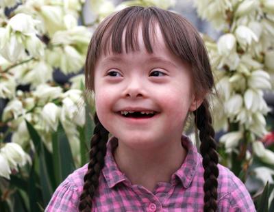 Una prueba médica que podría hacer desaparecer el síndrome de Down crea la polémica