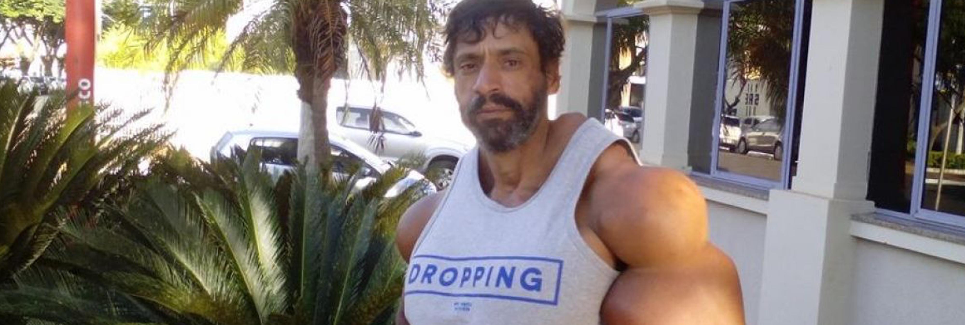 Un culturista brasileño se inyecta aceite en los bíceps para aumentar el diámetro de sus brazos