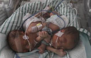 Unos padres abandonan a sus bebés al ver que son siameses