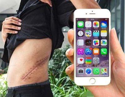 El drama del joven que vendió su riñón para comprarse un iPhone