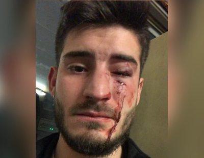 Un joven sufre una salvaje agresión homófoba en el metro de Barcelona