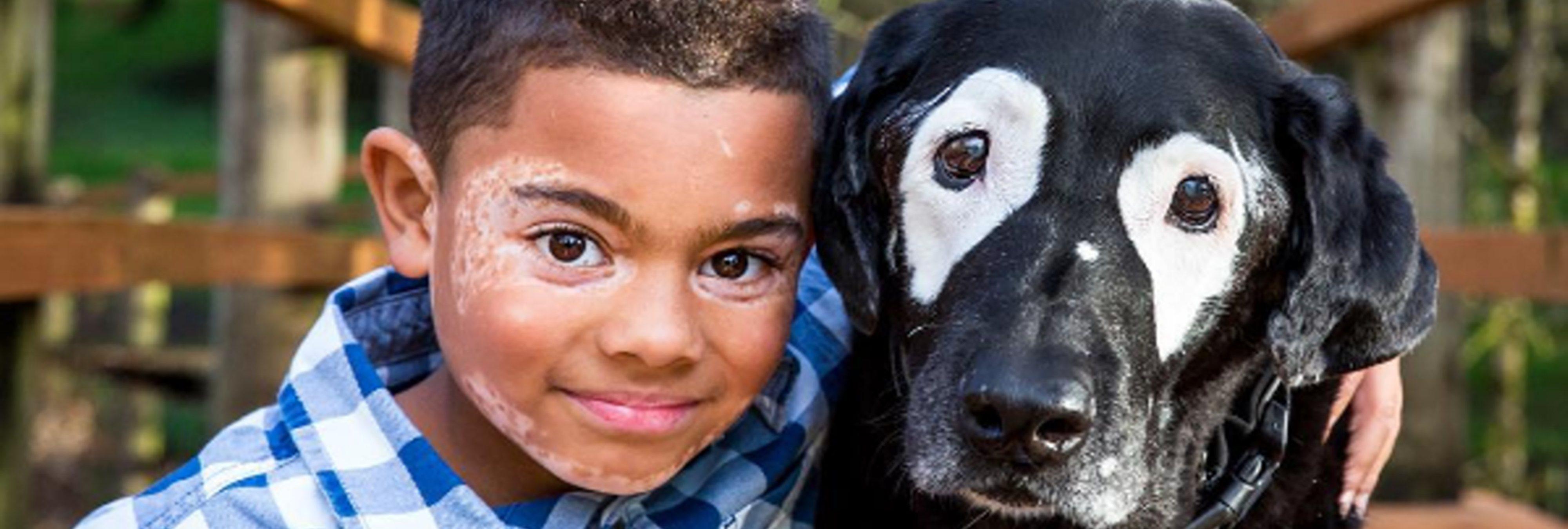 Un niño sale de la depresión tras conocer a un perro con vitiligo, su misma enfermedad