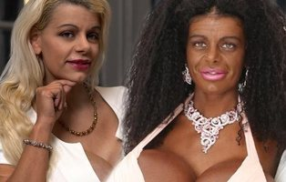 La mujer que se transformó en negra a base de inyecciones está convencida de que sus hijos serán negros