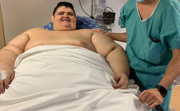 Se sometió a una gastrectomía y un bypass gástrico