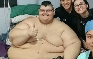 El sorprendente cambio del 'hombre más obeso del mundo' tras perder 200 kilos
