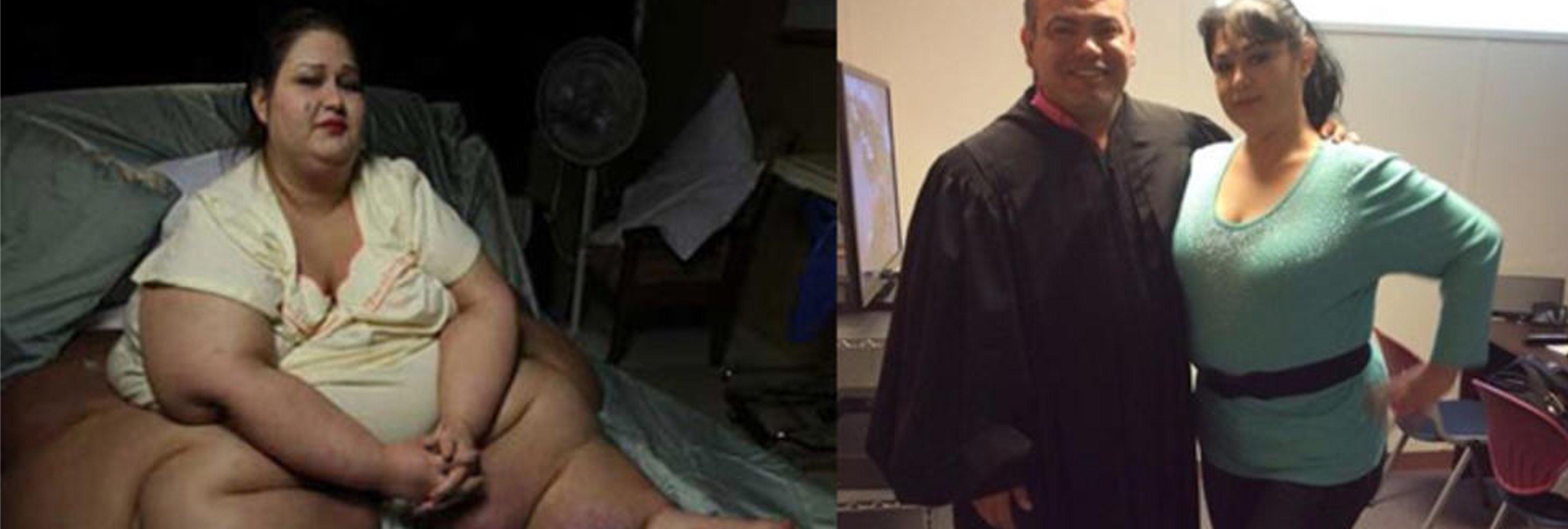 El increíble cambio físico de la mujer más obesa del mundo
