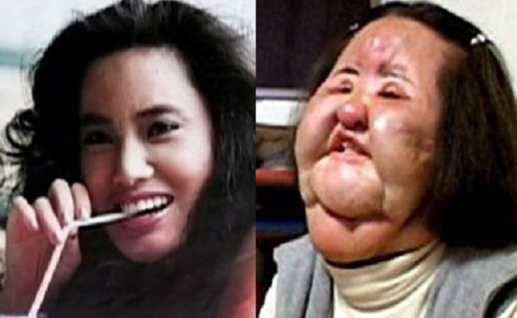El antes y el después de Hang Mioku