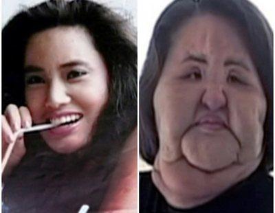 """Hang Mioku, la historia del """"Monstruo de las cirugías"""""""