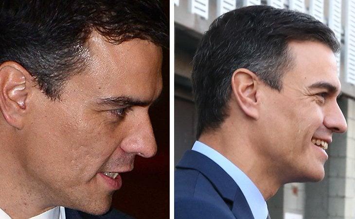 La piel de Pedro Sánchez ha mejorado de 2014 a 2019