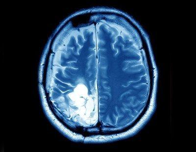 A punto de morir con el cerebro lleno de pus con una infección producida por bastoncillos