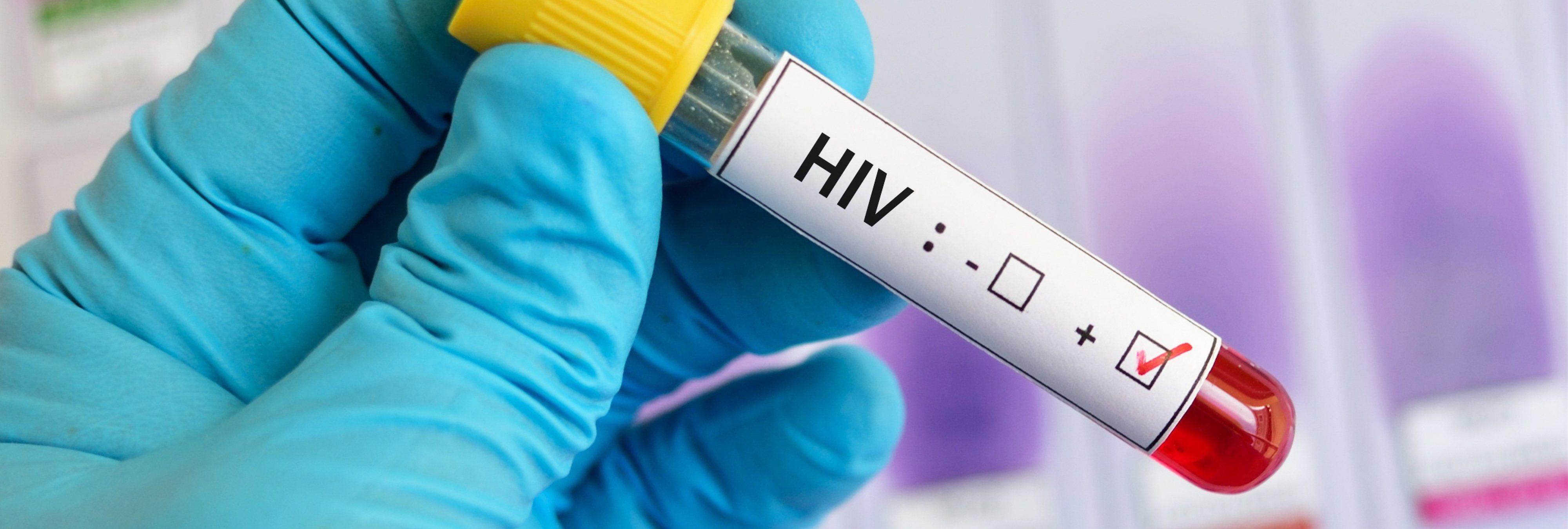 Bugchasing: la peligrosa moda de querer contagiarse de VIH por el subidón de adrenalina
