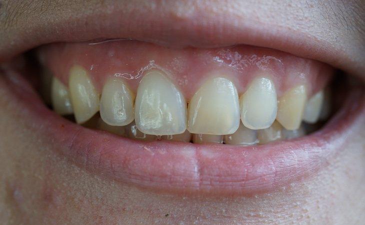 Los productos con carbón activado prometen blanquear los dientes