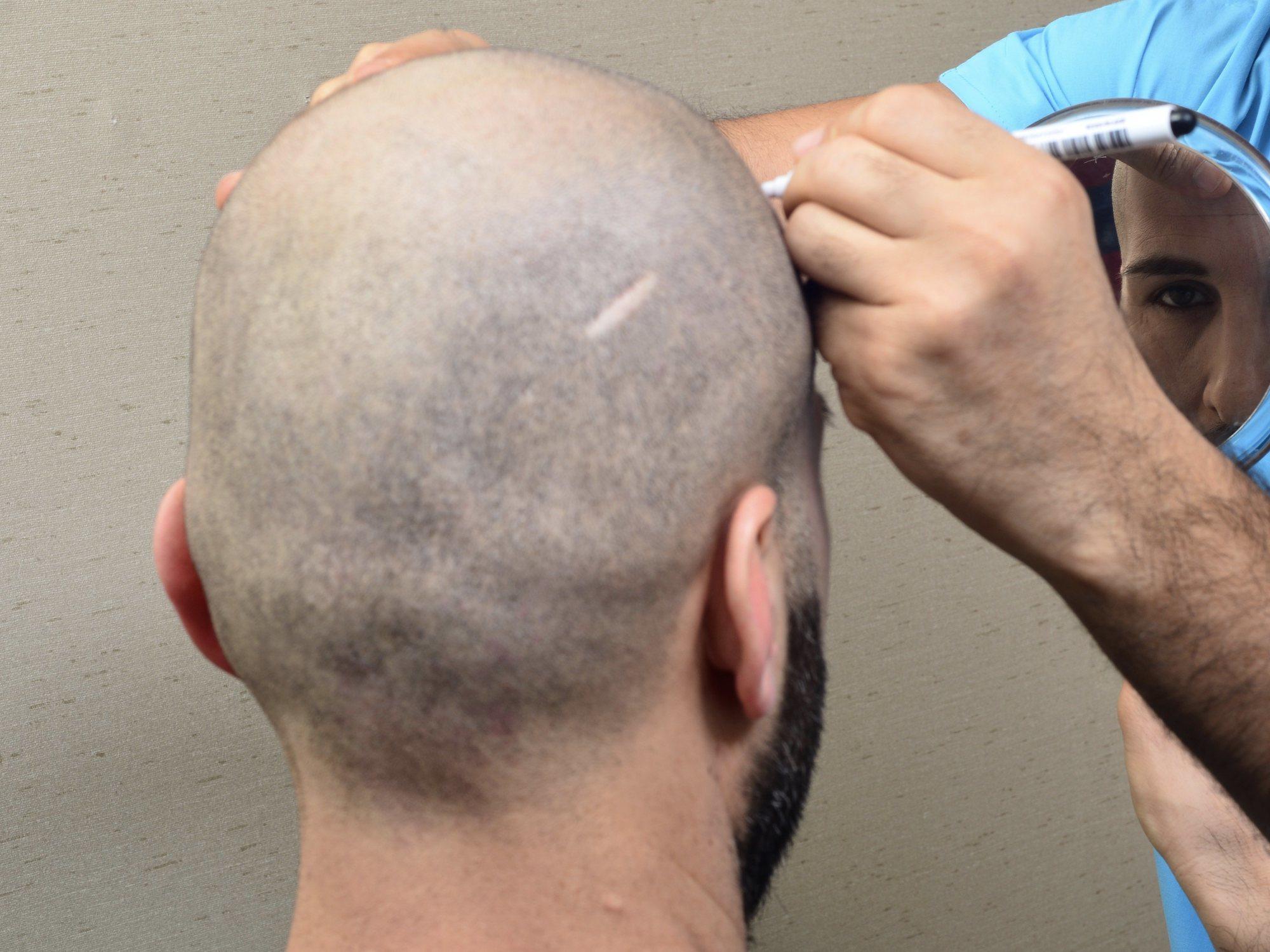 Muere con 39 años tras un implante de pelo en una prestigiosa clínica de Bilbao