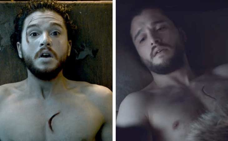 La cicatriz de Jon Snow