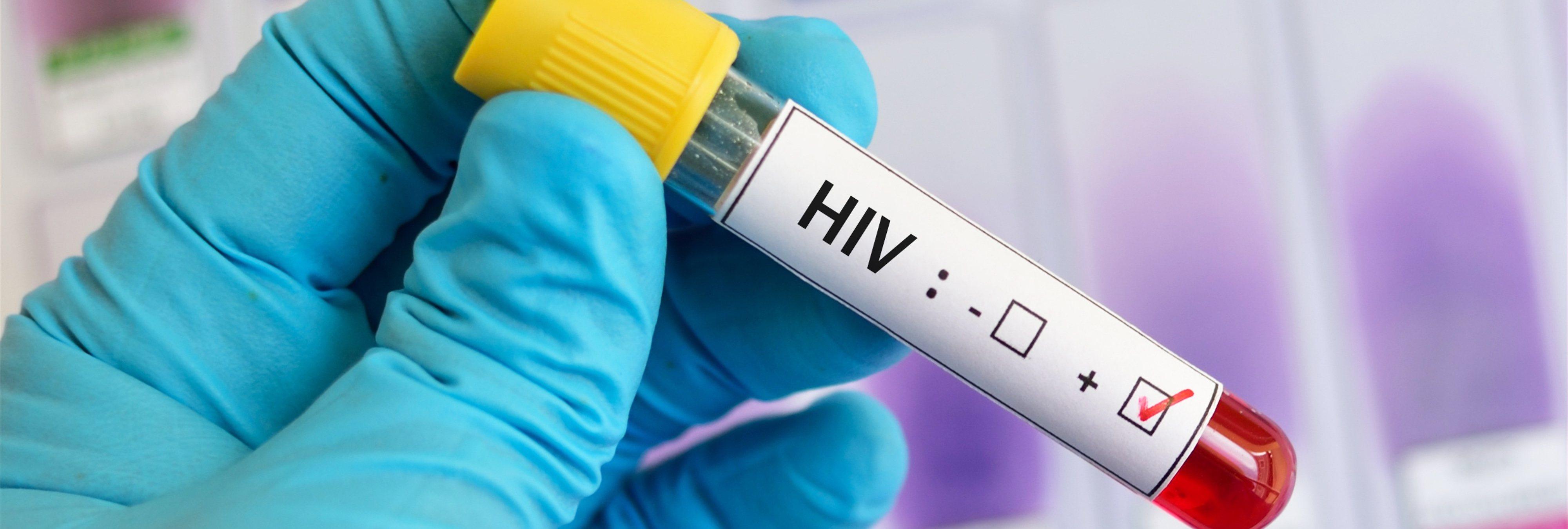 """Detienen al pediatra que contagió 437 niños de VIH al reutilizar jeringuillas """"por ahorro"""""""