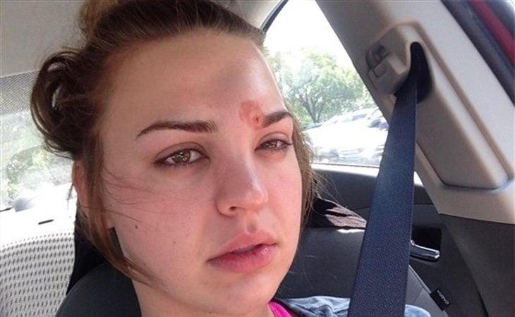 Katie Wright casi pierde la visión por una infección en la ceja