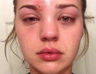 A punto de morir por una infección transmitida por su brocha de maquillaje