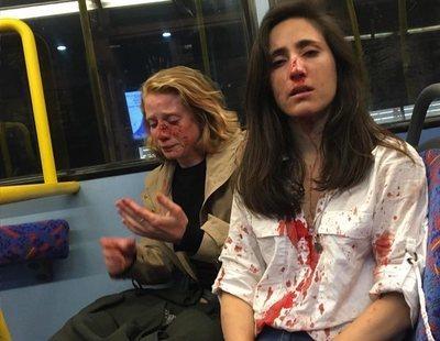 Brutal agresión homófoba a una azafata y su novia en un autobús nocturno de Londres