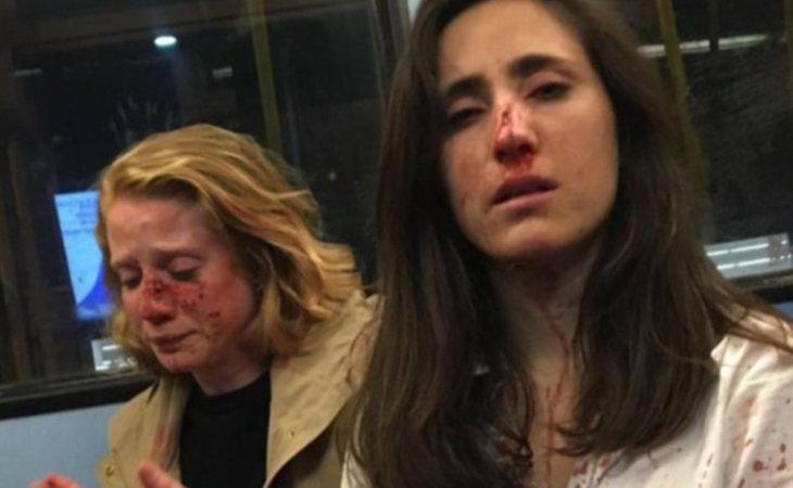 Melania Geymonat y a su novia Chris, tras la agresión
