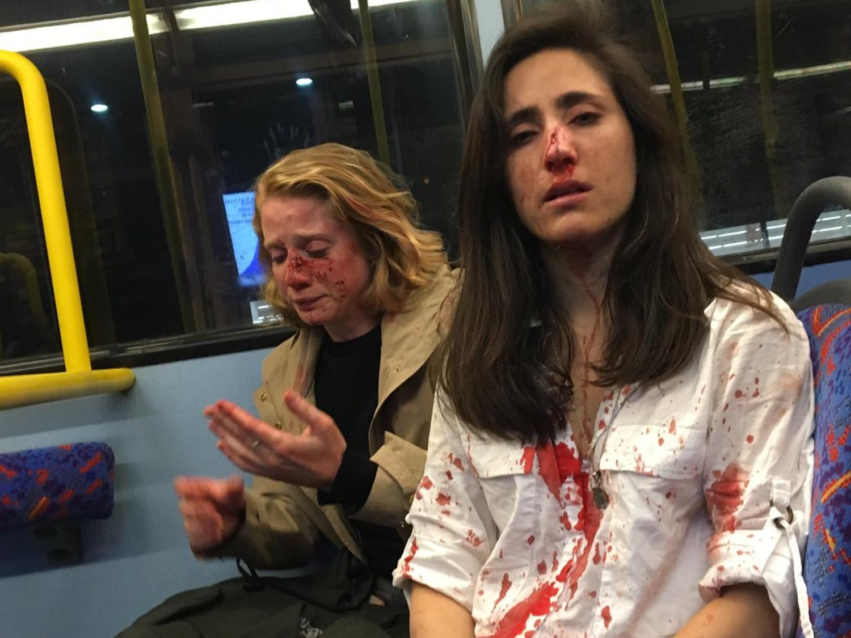 Cinco adolescentes detenidos por la brutal agresión homófoba a dos lesbianas en Londres