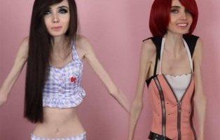 La saludable reaparición de Eugenia Cooney, youtuber que sufre anorexia