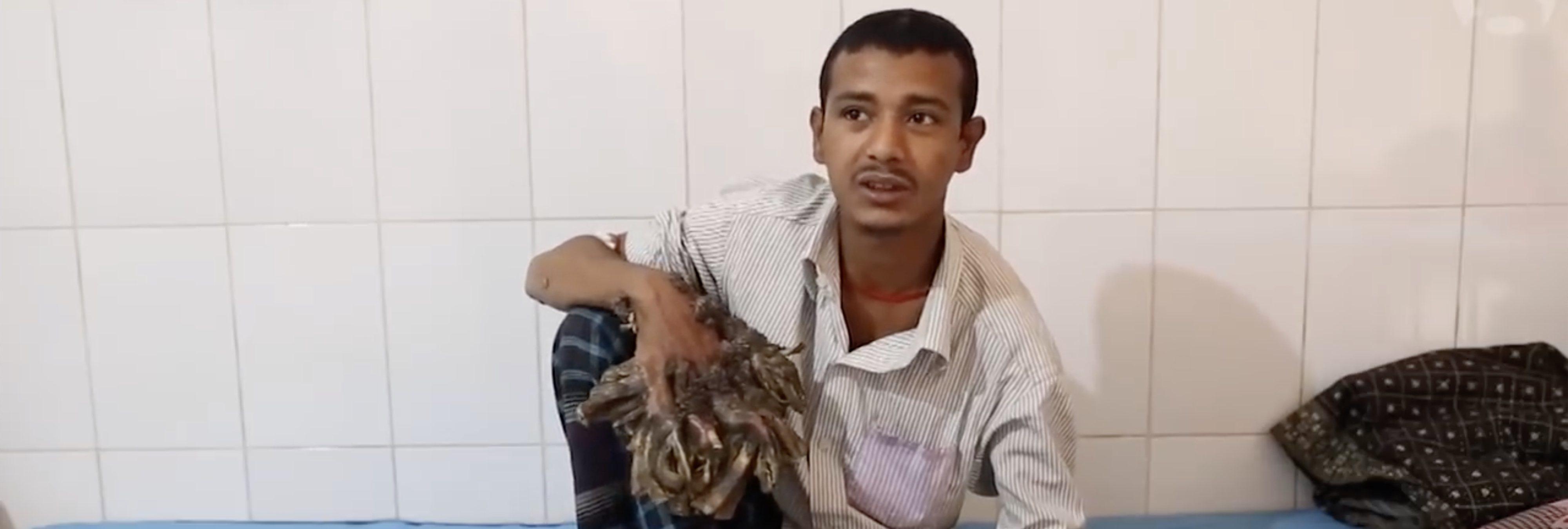 El famoso 'hombre árbol' pide que le amputen las manos tras 'curarse': no soporta el dolor