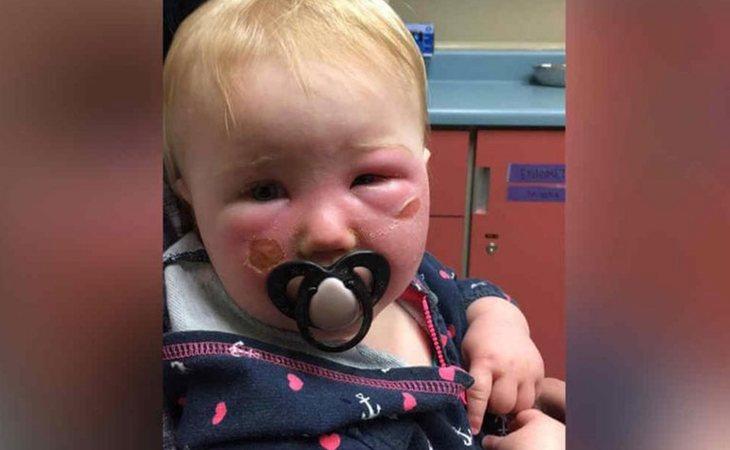 Así quedó la cara de Kyla tras las quemaduras producidas por un spray protector solar, en una foto compartida por la madre en redes sociales