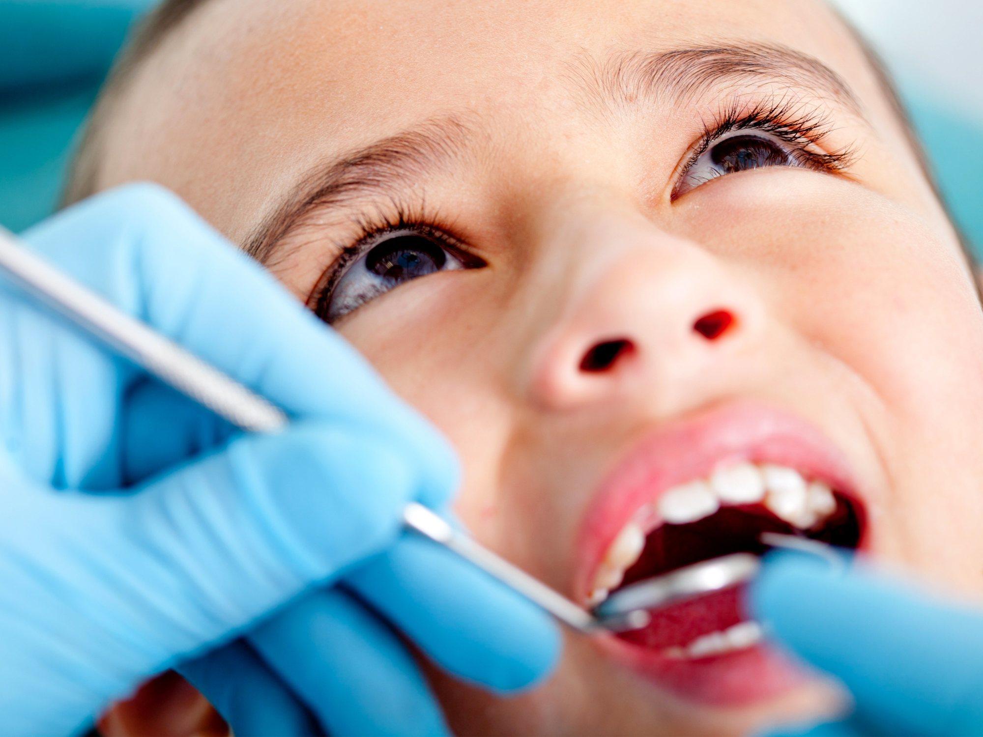 Extraen 526 dientes a un niño a causa de un tumor benigno