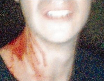 Brutal agresión homófoba en Tarragona: 15 personas golpean a un joven de 18 años