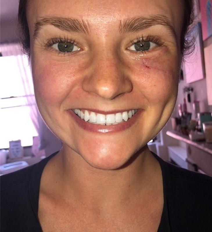 Gibson Miller pasó alrededor de tres años con un grano cancerígeno en su rostro