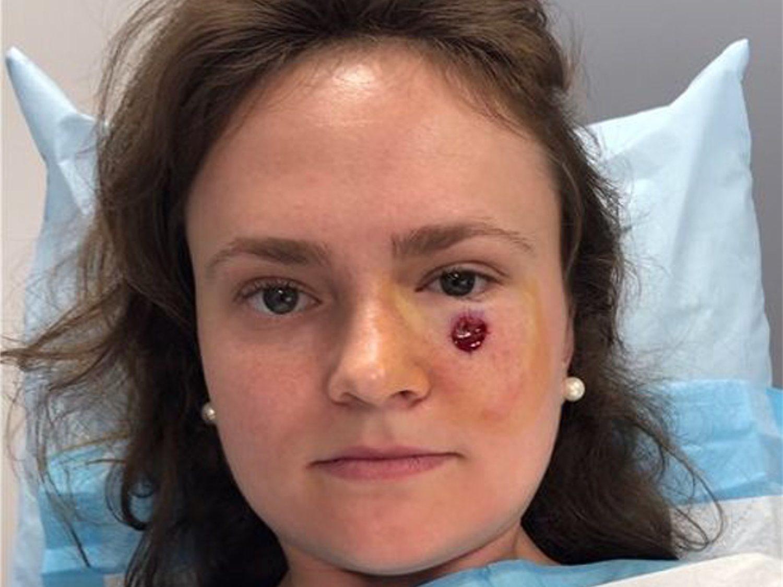 No era un simple grano en el rostro: llevaba tres años con un cáncer de piel extendiéndose
