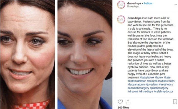 El post que la clínica del doctor Munir Somji realizó en Instagram dejando en evidencia a la duquesa de Cambridge