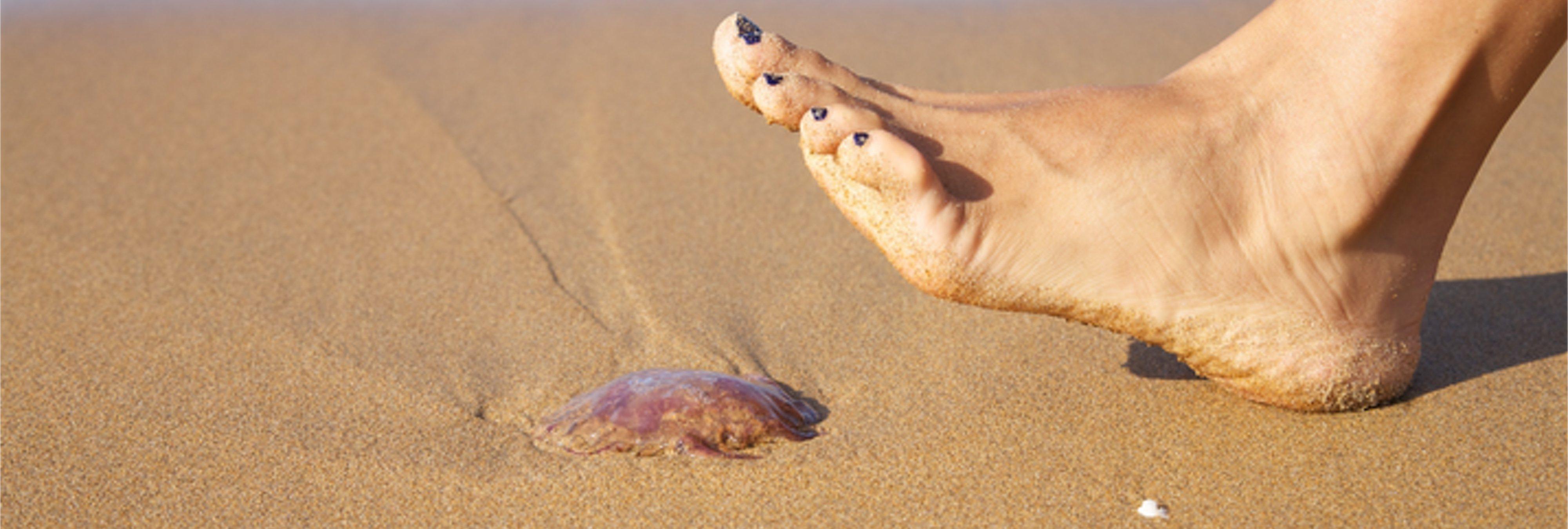 Vinagre contra las picaduras de medusa: ¿Verdad o mito?