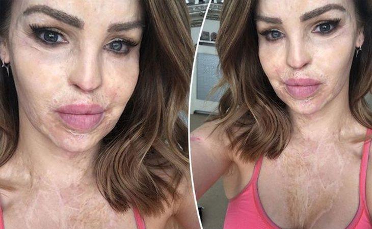 Katie Piper sufrió un ataque de ácido de su ex que le desfiguró el rostro