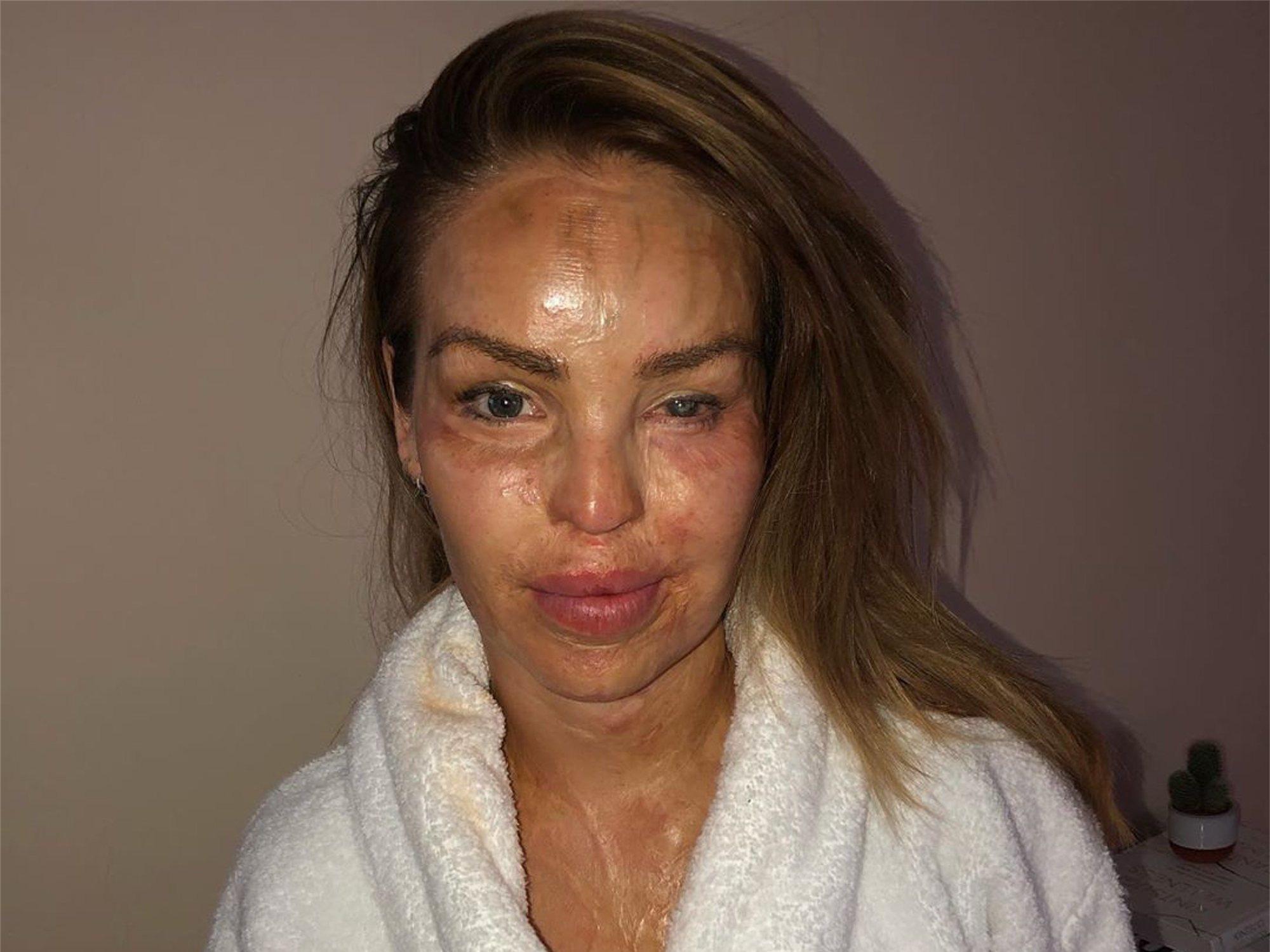 El contundente mensaje sobre autoestima de la modelo a la que su ex le desfiguró la cara con ácido