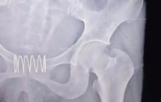 Una mujer se inserta un muelle metálico en la vagina para que actuase como anticonceptivo