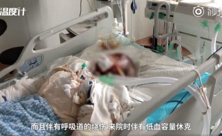 La joven superviviente padece secuelas tras el incendio