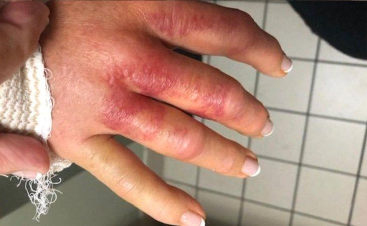La infección empezó a mostrar poco a poco sus síntomas