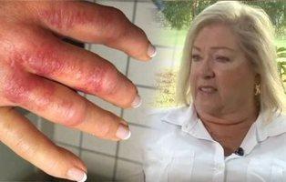 A punto de morir por la bacteria comecarne al retocarse las uñas en un centro de manicura