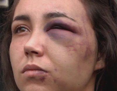 Violencia de género: Rebeca escapa por la ventana de la brutal paliza de su novio